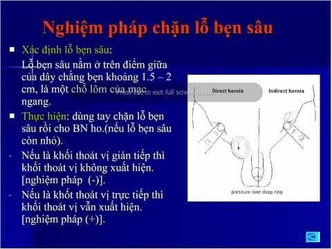 20110117-Thoát vị bẹn- Đỗ Hoàng Kha Y2008