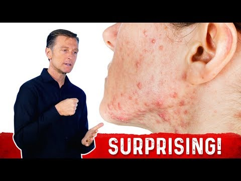 The Hidden Source of Your Acne