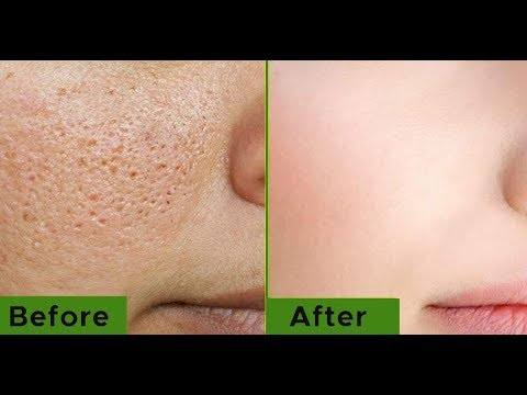 how to get rid of big pores and acne scars