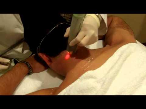 Laser Hair Removal by Dr. Jill Lezaic in Palm Beach, FL