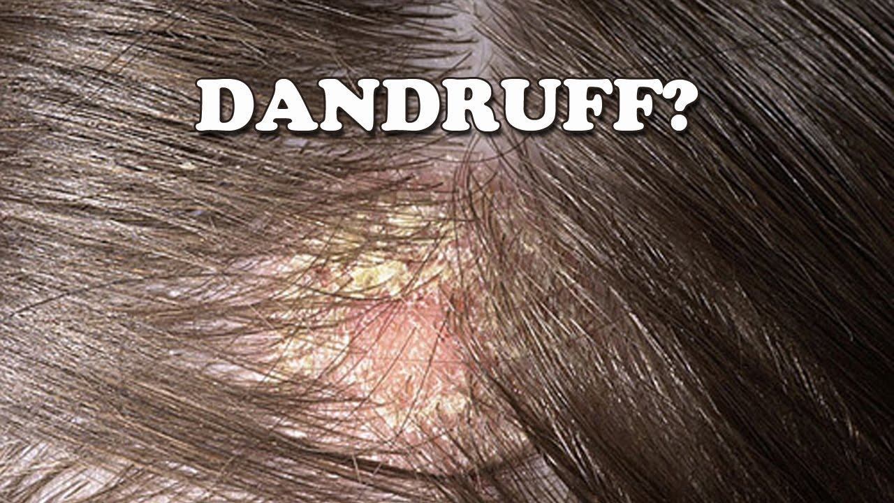 Dandruff Causes and treatments  Medical News Today