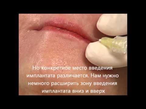 Коррекция губ и линий марионетки