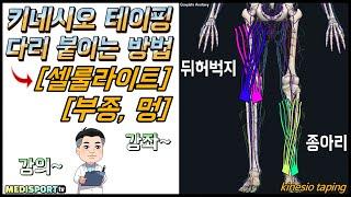 림프 키네시오 테이핑, [림프순환] 허벅지, 종아리 _…