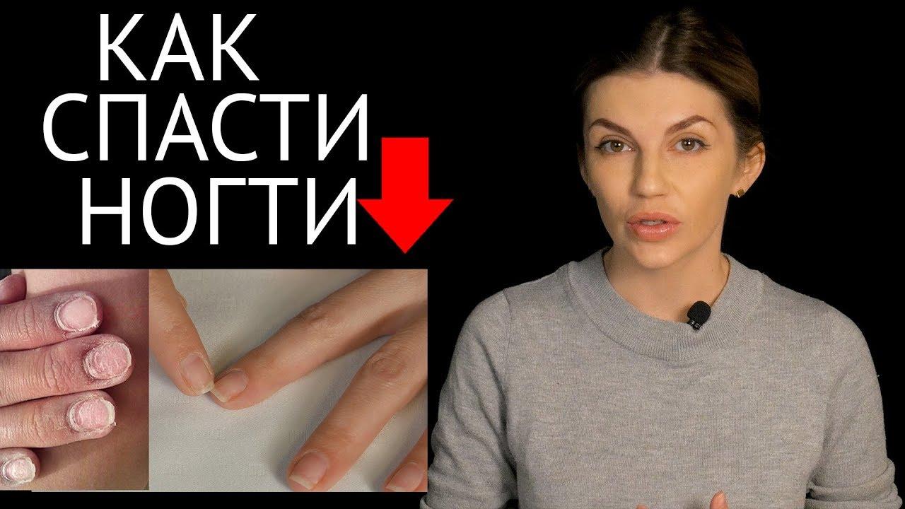 Как спасти, восстановить и отрастить ногти после наращивания? Ответ в видео!