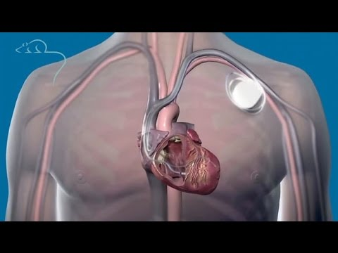 Top ten medical inventions: pacemakers