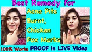 Best Home Remedy Acne Pits Burnt Marks Chicken Pox Scars