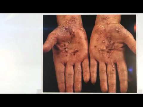 Finocchio a dermatite atopic