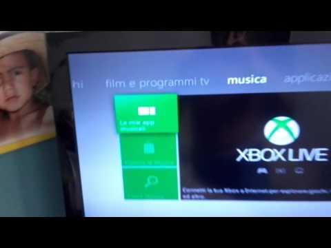 Come ascoltare musica su l'Xbox