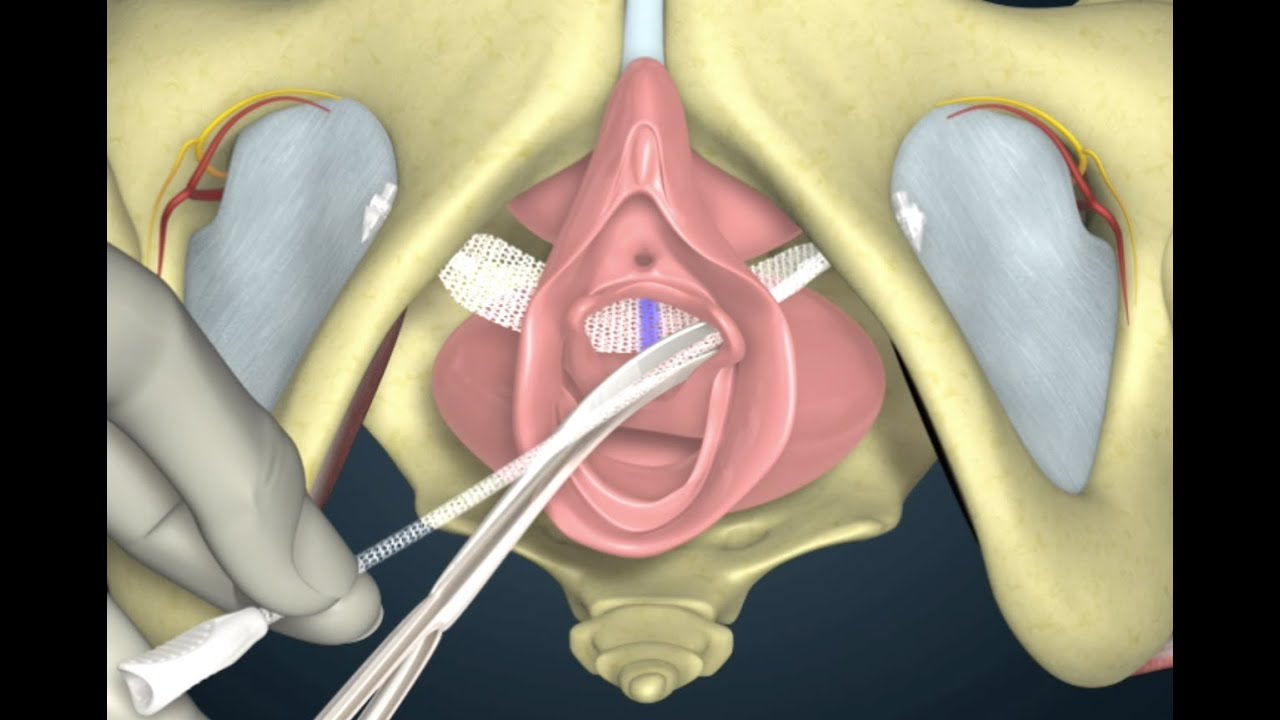 tack with bladder hysterectomy vaginal a