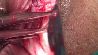 Non Descent Vaginal Hysterectomy (NDVH)