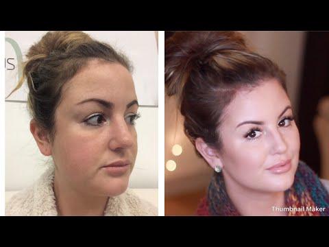 Cheek Filler, Lips & Botox 👄💉 | Cost, Pain & My Experience