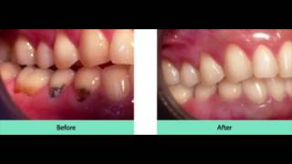 Information about Pinhole Surgical Technique: Dr Svans (480) 219-8760