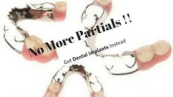 No more Partial Dentures, get  dental implants instead