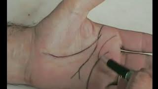 Chirologia  La linea del Cuore nell