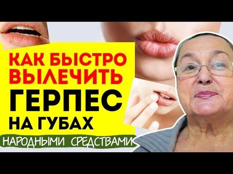 Как быстро вылечить герпес на губах | Народные средства