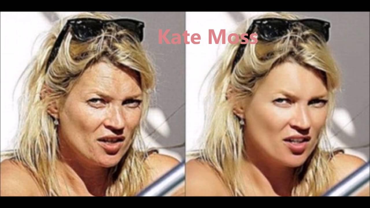 Veja 15 fotos de famosas antes e depois de usar …