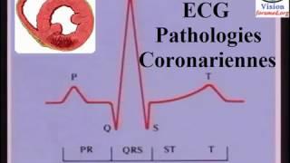 Interprétation de L'Électrocardiogramme: ischémie et infarctus du myocarde