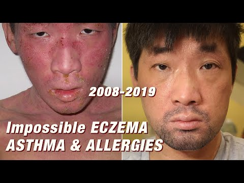 2008-2019: Curing Impossible Eczema, Food Allergy, Asthma (Dupixent, Cyclosporine, Cromolyn) | Ep243
