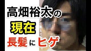 【関連動画】 【感動】『第68回NHK紅白歌合戦 』嵐・櫻井翔が怪我を隠し...
