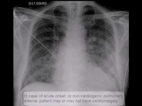 chest-x-ray,-pulmonary-edema,-lungs