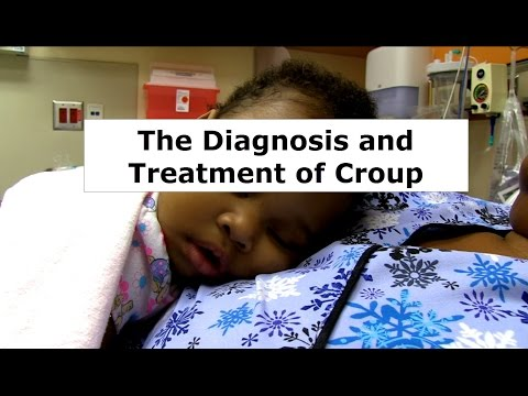Croup Signs and symptoms in youngsters