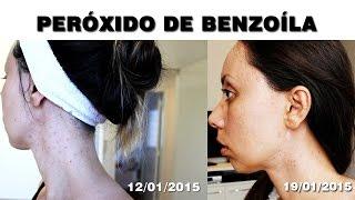 Peróxido de Benzoíla ou Ácido Salicílico? | Acne depois do 30 (continuação)