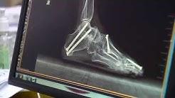 Rheumatoid Arthritis Fixing The Feet