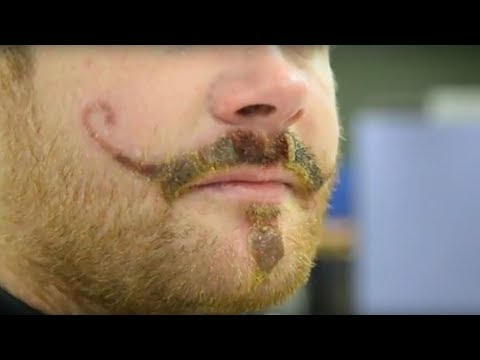 Henna Tattoo Allergy Leaves Man With Permanent Handlebar Mustache