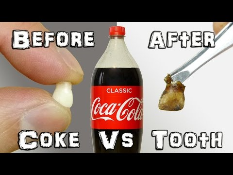 What Does It Do? - Coke Vs Teeth Experiment