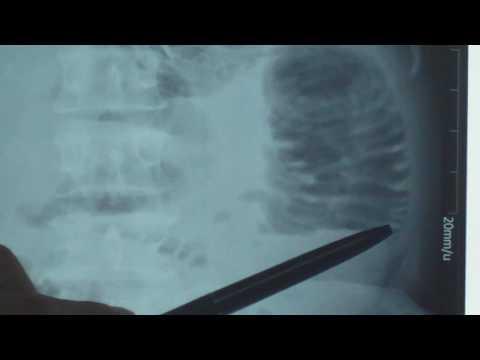 Nhận định hơi của ruột non hay ruột già trên x-quang bụng