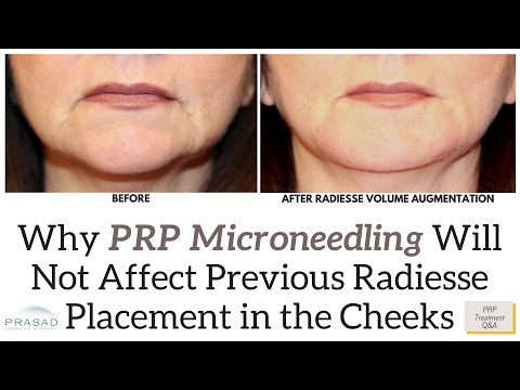 Why Microneedling is Not Deep Enough to Affect Previously Placed Radiesse Filler