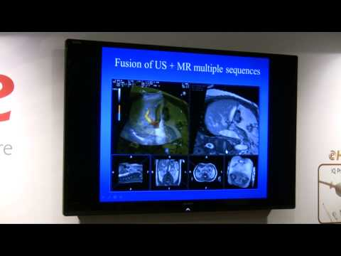 Fusion Imaging e MdC: lo stato dell'arte (oggi e domani)