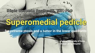 6 o'clock tumor and extreme ptosis