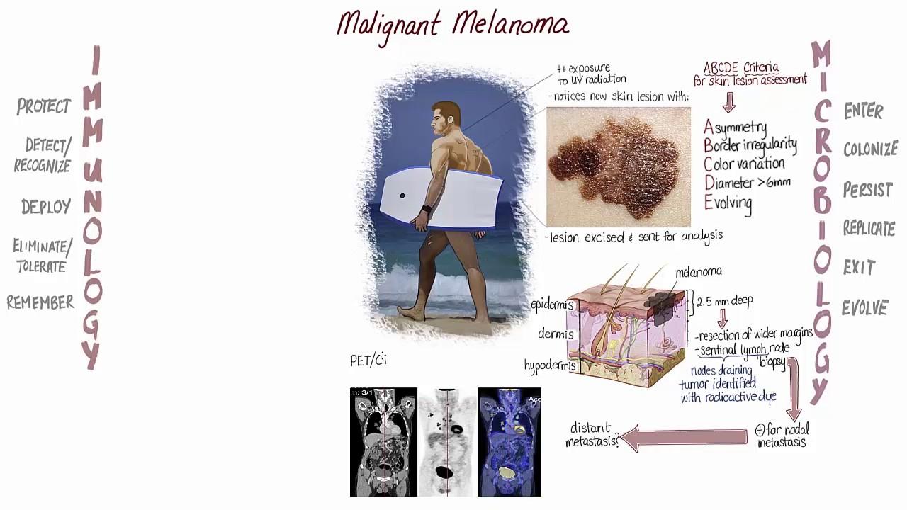 Melanoma Springboard