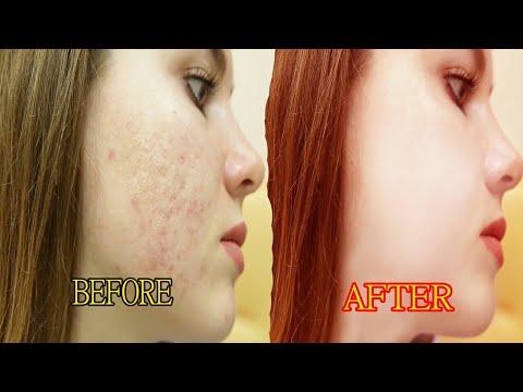 How to photo scene cleaner Photoshop tutorial Bangla thumbnail