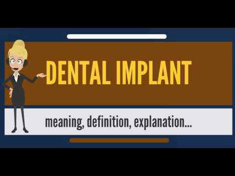 What is DENTAL IMPLANT? What does DENTAL IMPLANT mean? DENTAL IMPLANT meaning & explanation