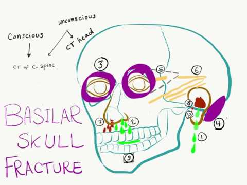 10 Signs And Symptoms Of Basilar Skull Fracture (Basal Skull Fracture)