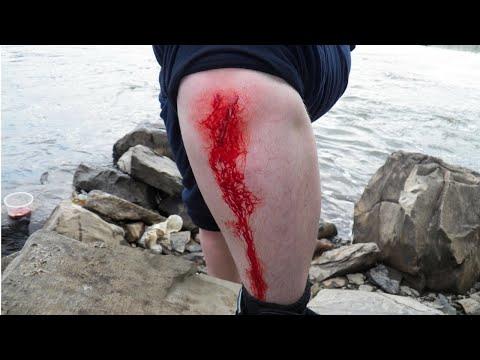 Catfishing GONE WRONG!!! (Blood Alert)