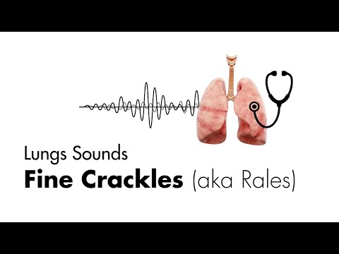 crackles or rales are caused by