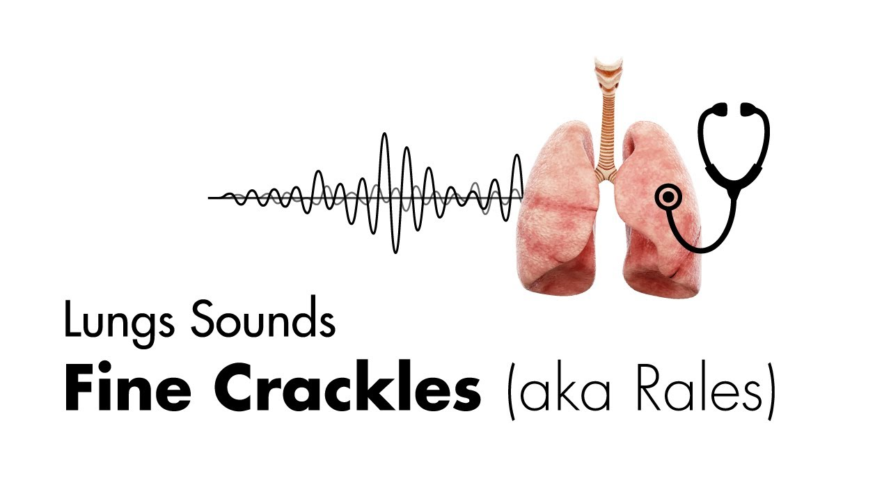 Fine Crackles (Rales) - Lung Sounds - MEDZCOOL - YouTube