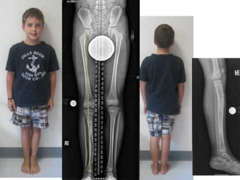 Congenital Leg Length Discrepancy: Russell Silver Syndrome In Children