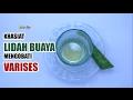 Khasiat Lidah Buaya Untuk Mengobati Varises / Natural Remedies for Varicose Veins