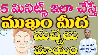 ఇలా చేస్తే ముడతలు, మొటిమలు, మచ్చలు మాయంIPimples Removal on Face|Motimalu|Manthena Satyanarayana Raju