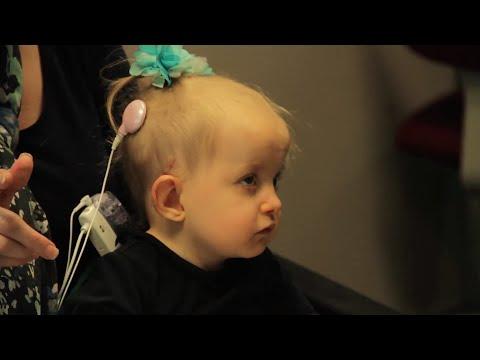 Kyla Grace Burke  Cochlear Implant
