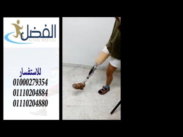 شاهد افضل سوكت للطرف الصناعى  الذكي الالمانى - يمكنك الان لعب الكرة بحرية تامة - الفضل ميديكال مصر