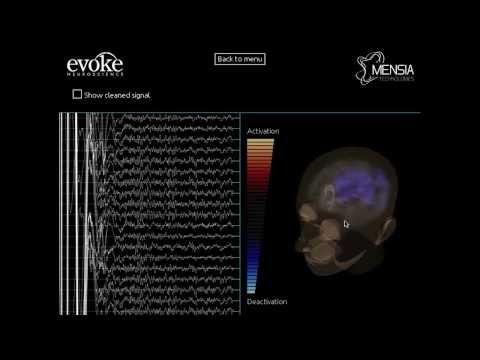 Mensia Neurofeedback protocol using LORETA in real-time