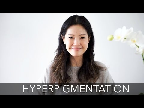 Treating Hyperpigmentation | How to Fade Dark Spots