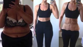 Минус 85 кг: история похудения одной девушки