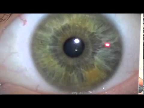 Eye Review Part 1 - Dr. Morse Reviews Submitted Eyes