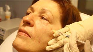 Mezoterapia igłowa - Akademia Medycyny i Piękna SWSM.